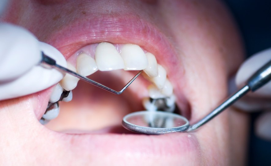 Hudgell Solicitors secures compensation of more than £30,000 for patients of four dentists at Grimsby practice