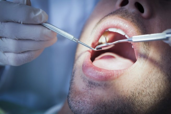 Compensation for patients left with tooth decay and gum disease by same dentist